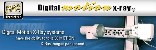 Länk till Digital Motion X-ray!